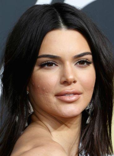 Kendal_Jenner_Model_Acne